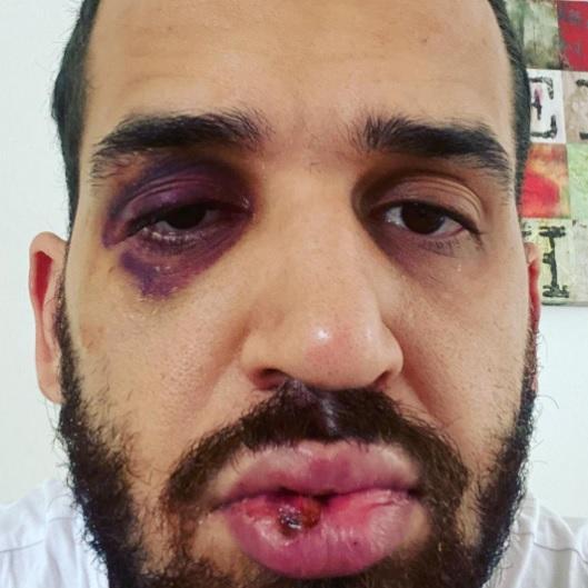 José Panini foi espancado por um grupo de 'pessoas conhecidas' sobre os riscos da Covid-19/Reprodução/Instagram