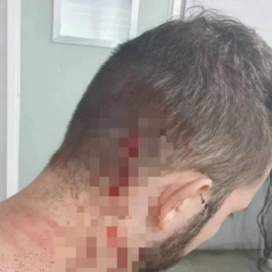 Agente desferiu coronhadas e socos contra a vítima que ficou ferida/Reprodução/Agência O Dia