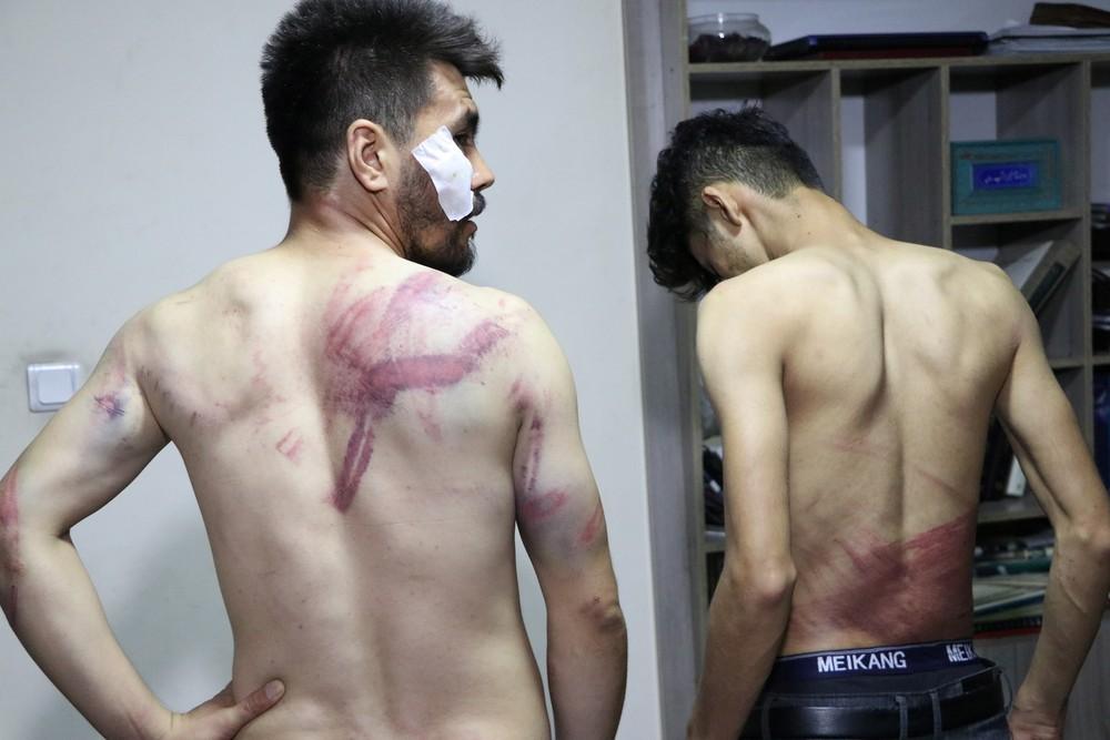 Jornalistas mostram ferimentos após serem espancados pelo Talibã em Cabul/Etilaatroz/via Reuters