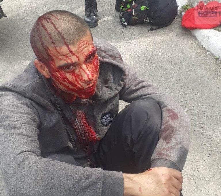 Luiz Cláudio de Oliveira Freitas ficou ferido/Reprodução/WhatsApp